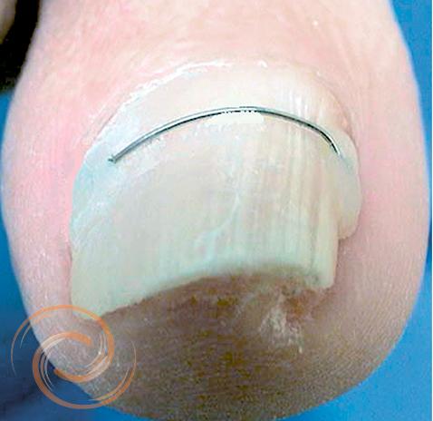 Orthonyxie onychoplastie